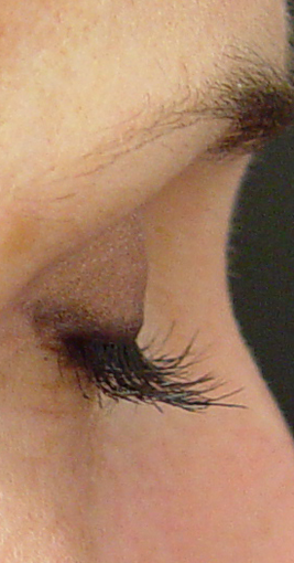 Lashes treated with Lumigan/Latisse after 152211