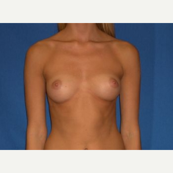 18-24 year old woman treated with Breast Implants before 3219891