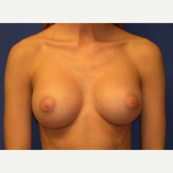 18-24 year old woman treated with Breast Implants after 3219891