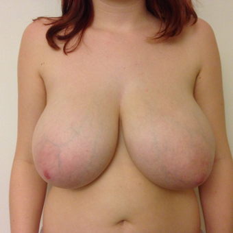 18-24 year old woman treated with Breast Reduction before 3697417