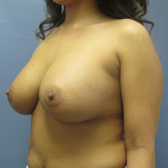 Breast Implant Revision 457 cc to 770 cc before 3389240