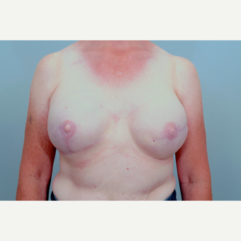 45-54 year old woman treated with Breast Reconstruction after 3321519