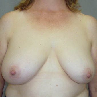 45-54 year old woman treated with Breast Reconstruction before 3321519