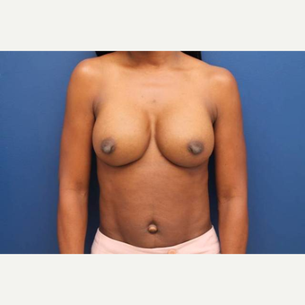 34 year old female, 400cc silicone gel high profile breast implants placed under the muscle after 3813677
