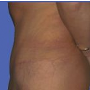 Tummy Tuck after 3720549
