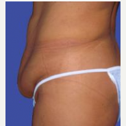 Tummy Tuck before 3720549