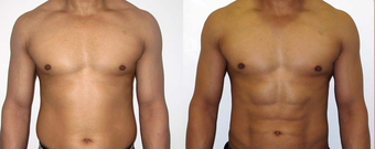 25-34 year old man treated with Vaser Liposuction before 4599300