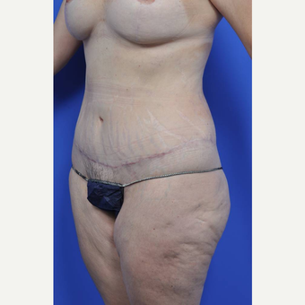 35-44 year old woman treated with Body Lift after 3450487