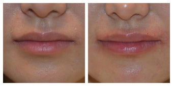 23 Year Old Female Treated for Lip Augmentation before 1373416