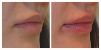 23 Year Old Female Treated for Lip Augmentation after 1373416