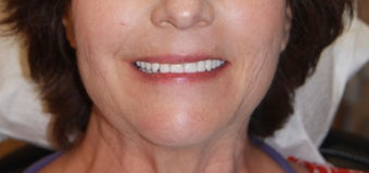 All-on-4® Dental Implants after 1327621