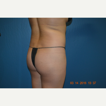 18-24 year old woman treated with Brazilian Butt Lift before 3169958