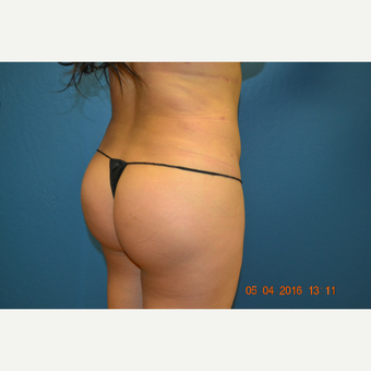 18-24 year old woman treated with Brazilian Butt Lift after 3169958