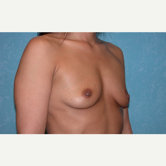 23 year old breast augmentation before 3732915