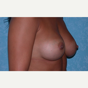 23 year old breast augmentation after 3732915