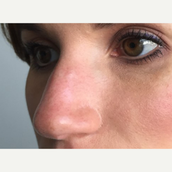 35-44 year old woman treated with Non Surgical Nose Job after 3214919