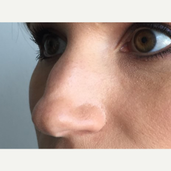 35-44 year old woman treated with Non Surgical Nose Job before 3214919