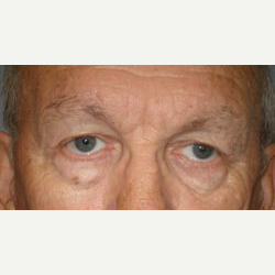 65-74 year old man treated with Brow Lift after 3097504