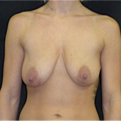 25-34 year old woman treated with Breast Lift with Implants before 3118018