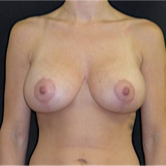 25-34 year old woman treated with Breast Lift with Implants after 3118018