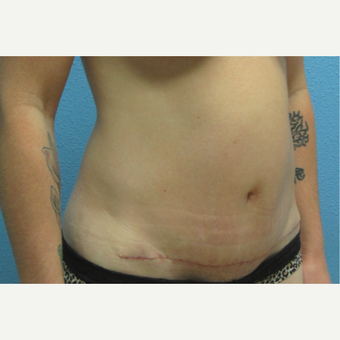 35-44 year old woman treated with Mini Tummy Tuck after 3215458