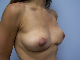 Breast Implant Removal with Breast Lift after 1008895