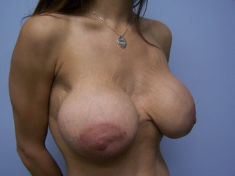 Breast Implant Removal with Breast Lift before 1008895
