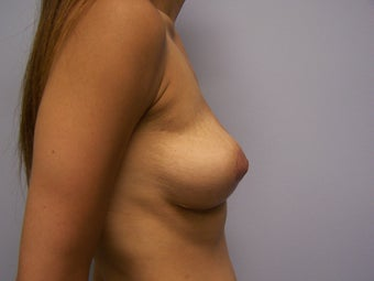 Breast Implant Removal with Breast Lift 1008895