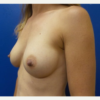 35-44 year old woman treated with Breast Augmentation after 3252260