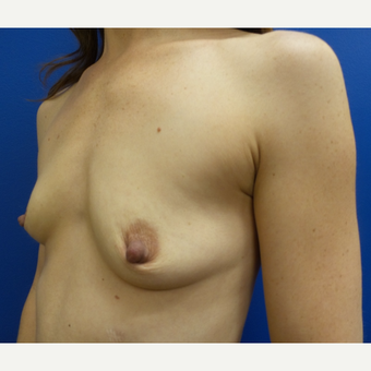 35-44 year old woman treated with Breast Augmentation before 3252260
