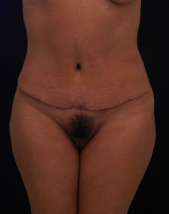 42 year old female treated with a TT with no Liposuction after 1124769