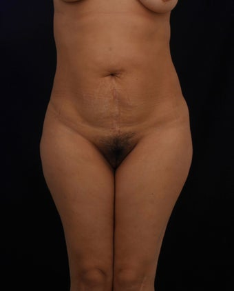 42 year old female treated with a TT with no Liposuction before 1124769
