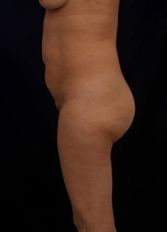 42 year old female treated with a TT with no Liposuction 1124769