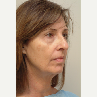 55-64 year old woman treated with Neck Lift before 3763985