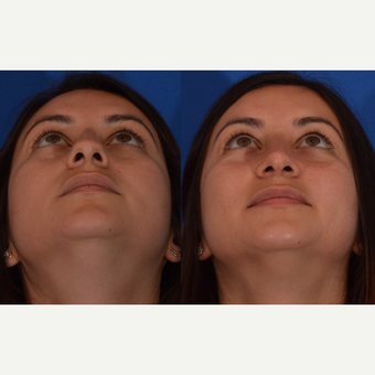 25-34 year old woman treated with Rhinoplasty after 3240896