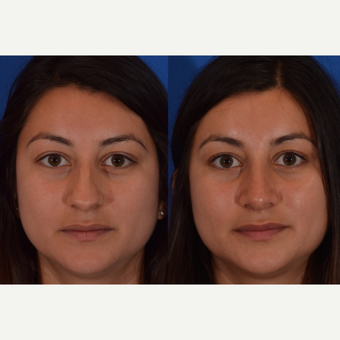 25-34 year old woman treated with Rhinoplasty before 3240896