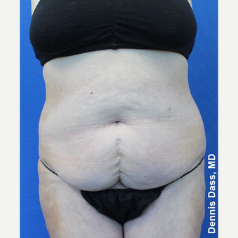55-64 year old woman treated with Tummy Tuck before 3679912