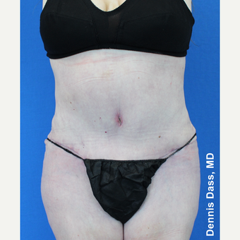 55-64 year old woman treated with Tummy Tuck after 3679912
