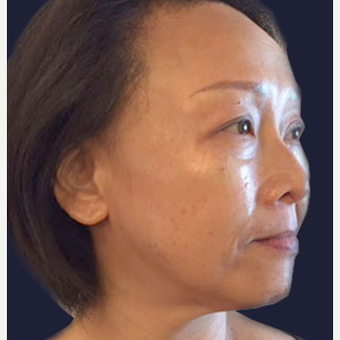 35-44 year old woman treated with Injectable Fillers and Botox after 3137229