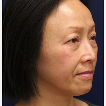 35-44 year old woman treated with Injectable Fillers and Botox before 3137229
