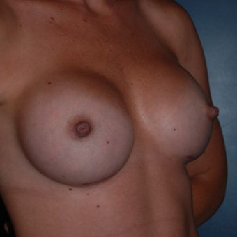 18-24 year old woman treated with Breast Augmentation 1570036