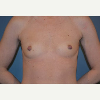 18-24 year old woman treated with Breast Augmentation before 1570036
