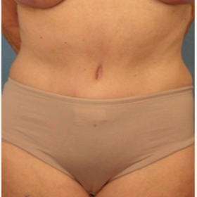 55-64 year old woman treated with Tummy Tuck after 3543517