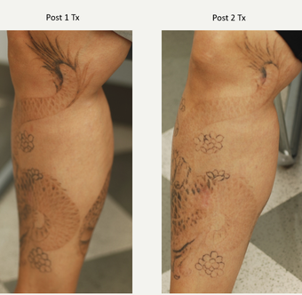 40 year old woman treated with two rounds of PicoSure Tattoo Removal
