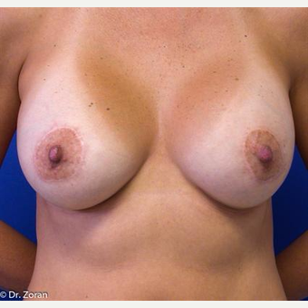 35-44 year old woman treated with Breast Lift after 3033236