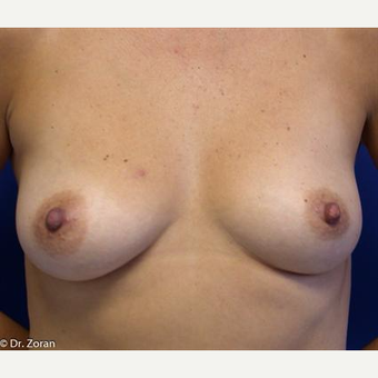 35-44 year old woman treated with Breast Lift before 3033236