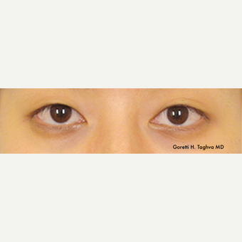 18 year old woman treated with Asian Eyelid Surgery before 2698208