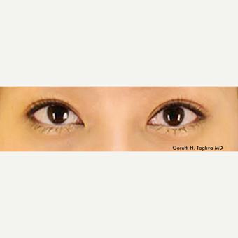 18 year old woman treated with Asian Eyelid Surgery