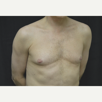 45-54 year old man treated with Male Breast Reduction before 3181729