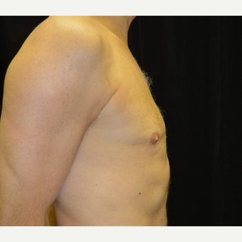 45-54 year old man treated with Male Breast Reduction after 3181729